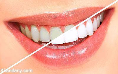 روشهای خانگی سفید کردن دندان