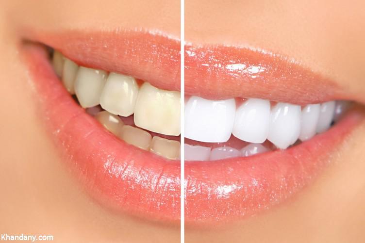 چند روش ساده برای سفید کردن دندانها در خانه