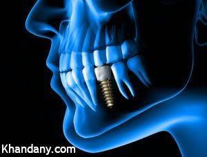 آشنایی کامل با ایمپلنت دندان
